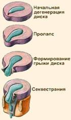 Механизм развития грыжы позвоночника