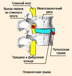 От чего появляются грыжи в грудном отделе позвоночника