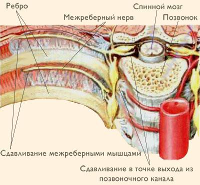 Лечение грыжа диска в пояснице