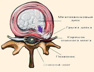 Остеохондроз сильное головокружение слабость